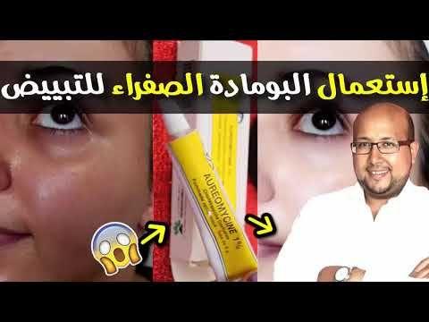 إستعمال هذه البومادة الصفراء لتبييض البشرة هل هي فعلا فعالة مع الدكتور عماد ميزاب Youtube Incoming Call Screenshot Cards
