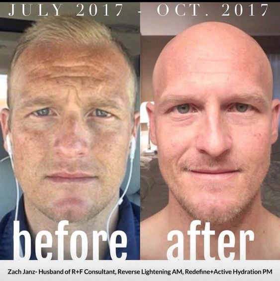 Men Need Skin Care Products Too Check Out This Before And After Using The Reverse Lightening Regim Rodan And Fields Reverse Sensitive Skin Care Skin Bleaching