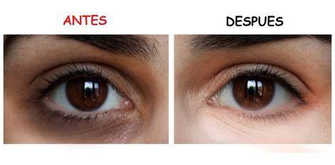 Elimina Las Ojeras Por Completo Con Esta Receta Ojeras Oscuras