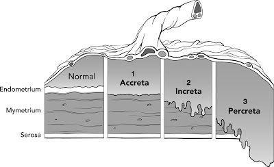 The Well-Rounded Mama: Placenta Accreta, Part One: What Is Accreta?: