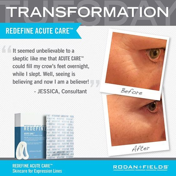 expression lines  bothering     solution acute care   newest product