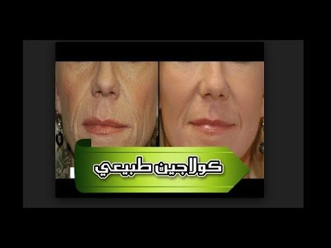 طريقة كريم لبان الذكر مع فيتمينe تخلصي من الحفر والبقع وشدي بشرتك اصغر اللبان الضكر لبان الذكريعالج تهيج الجلد Acne Light Therapy Skin Care Beauty Care