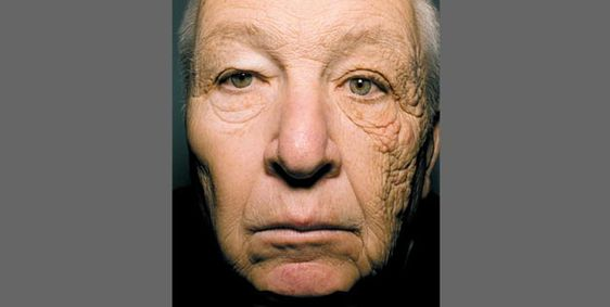 A 69-year-old truck driver with sun damage to one side of his face (© Jennifer R.S. Gordon, M.D., Joaquin C. Brieva, M.D./Northwestern University/New England Journal of Medicine, http://aka.ms/sundamage)