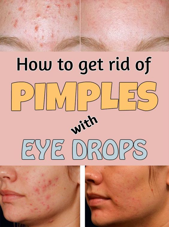 How to get rid of pimples with eye drops.