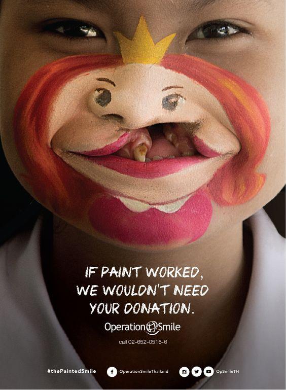 operation-smile-enfant-fente-labiale-maquillage-princesse