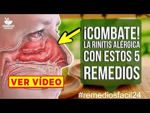 Como Curar La Rinitis Conoce Los 5 Remedios Caseros Para La Rinitis Alérgica Youtube Rinitis Alérgica Remedios Remedios Caseros