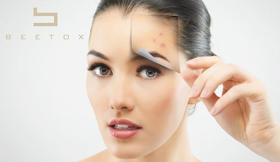 Identify your skin type before you treat it. Oily: Shiny skin, characterized by a layer of oil that can be associated with larger pores. People with oily skin tend to have lots of blemishes, blackheads and spots, and the skin often appears plump because the dead cells do not shed as quickly.