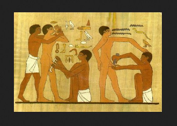 Have you ever wondered what the oldest illustration of a circumcision looked like? Of course you haven't, but we'll tell you anyway. A bas-relief—a type of sculptural technique in which the sculpted elements remain attached to