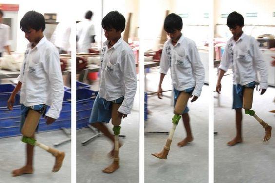 ReMotion Knee : une prothèse low-cost pour lutter contre le handicap