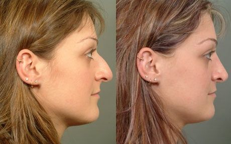Here's a look at Dr. Congdon's great work with a rhinoplasty procedure @ the Cedar Valley Center for Facial Plastic Surgery.