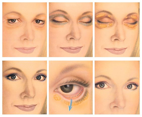 Eyelid Surgery Called Blepharoplasty Or Eyelid Lift Is A