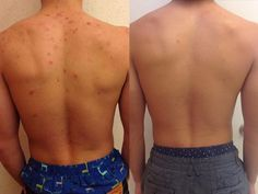 10 Ways to Get Rid Of Back Acne Fast and Naturally | HowHunter
