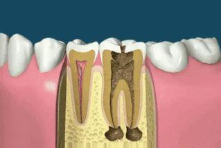 Ce soir... dormez moins bête ! Comment on fait un implant ? http://www.15heures.com/gif/aRj5 #OMG