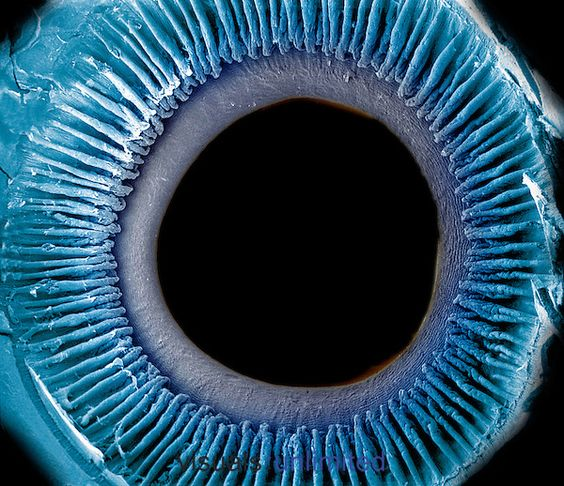 Eye showing the inner surface of the iris, pupil, and ciliary processes. The lens was removed to show the posterior surface of these structures. The iris regulates the amount of light that enters the pupil by changing its size and it is what gives the eye its color. SEM  **On Page Credit Required**: