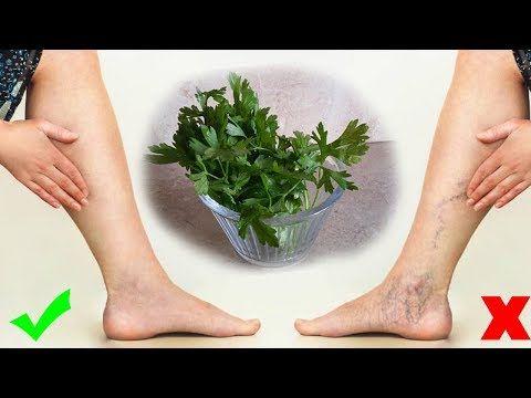 ينصح به الاطباء لعلاج دوالي الساقين في 7 ايام من اول استعمال تظهر النتيجة Youtube Aloe Vera Skin Care Skin Care Women Body Health