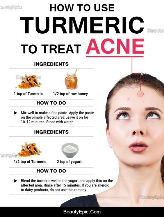 How To Use Turmeric For Acne Natural Acne How To Treat Acne Natural Acne Remedies