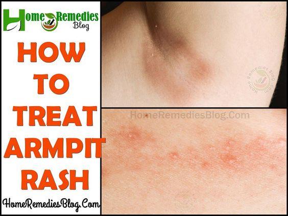 Home Remedies To Treat Armpit Rash Armpit Rash Underarm Rash Armpits