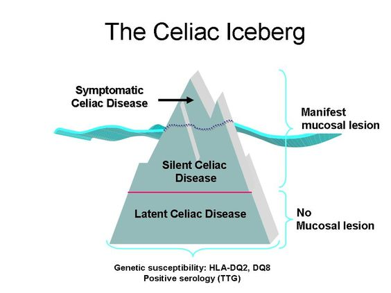 ICDS 2013: The Celiac Iceberg Revisited