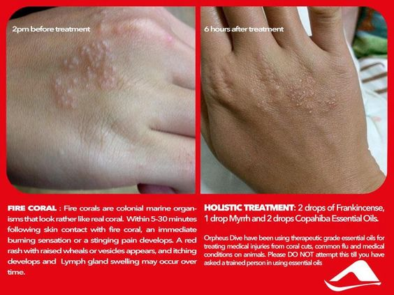 Pin By Esther Siew On All About Skin Eczema Psoriasis