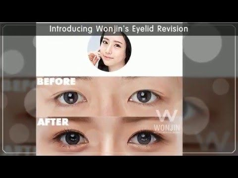 Get to Know Types Of Korean Eyelid Revision
