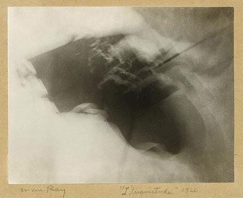 Man Ray (1890-1977) / Anxiety 1920