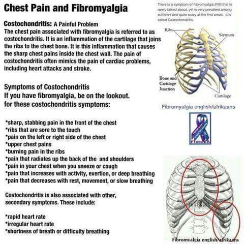Chest pain and Fibromyalgia (Costochondritis)   *more fun*