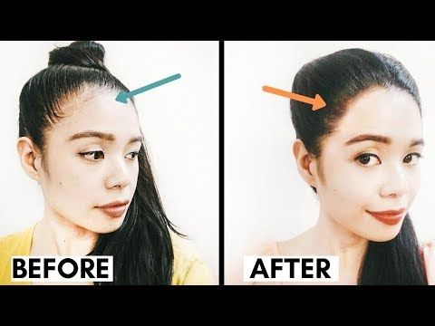 Pin By Mayajfritz On Latest News In 2020 Hair Regrowth Women Hairstyles For Receding Hairline Receeding Hairline