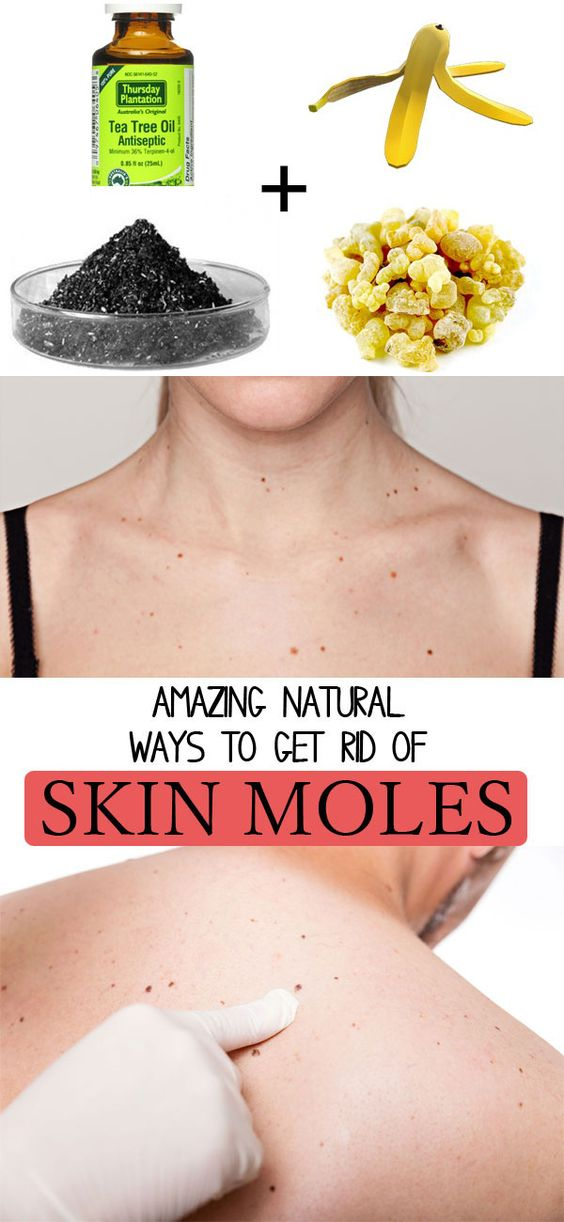 How To Get Rid Of A Flat Mole Overnight