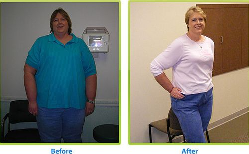 maintaining weight loss after adipex