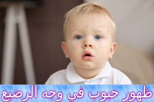ظهور حبوب في وجه الرضيع وعلاجه Baby Acne Baby Face Face