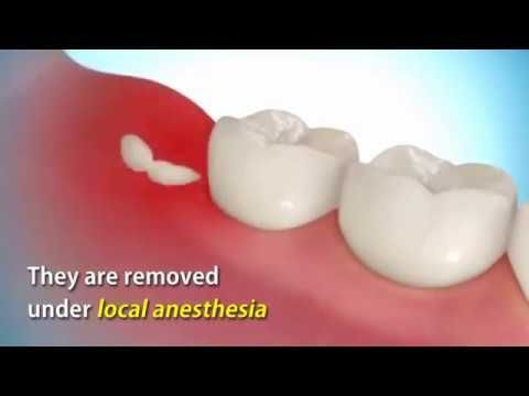 Needless Emergency Dentist You Are Dentistrystudent Clearchoicedentalimplantscost Wisdom Teeth Wisdom Teeth Recovery Wisdom Teeth Removal