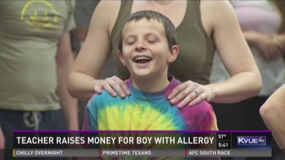 Austin boy, 9, with severe allergy needs service dog