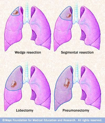 lobectomy surgical removal of a lobe of one lung