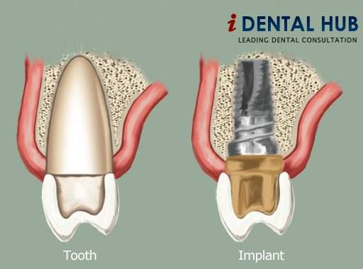 tooth implant price in sri lanka