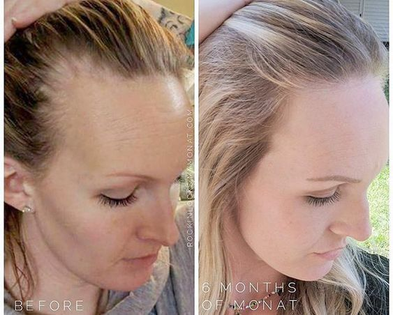 Hair Regrowth Fast And Naturally Monat Hair Hair Loss Men Postpartum Hair Loss