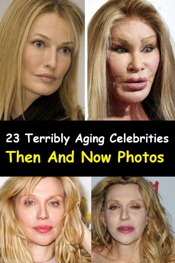 23 Terribly Aging Celebrities Then And Now Photos Celebrities Then And Now Plastic Surgery Celebrity Plastic Surgery