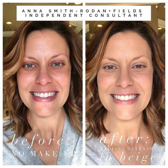 Sdastin Myrandf Com Rodan Rodan Fields Skin Care Rodan And Fields Consultant