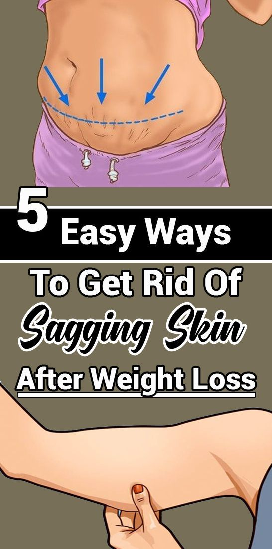 Pin On Fast Weight Loss Diet