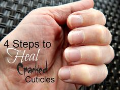 4 Steps to Heal Cracked Cuticles - ALL NATURAL steps to heal your cuticles by Simple Life Mom