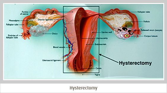 Uterus and hysterectomy