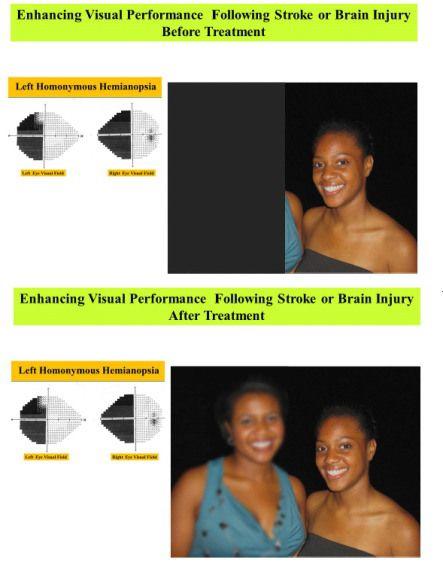 Occipital lobe, Visual impairment and The brain on Pinterest