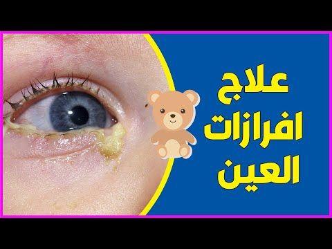علاج انسداد القنوات الدمعية وعلاج افرازات العين عند الاطفال والرضع شوفوا الفيديو للاخر Youtube Baby Health Baby Poster