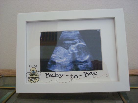 Baby To Bee Ultrasound Picture Frame pregnancy by BabytalkDesigns