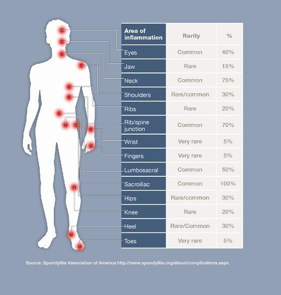 Ankylosing Spondylitis - Patient
