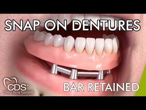 How Long Does It Take To Get Snap In Dentures