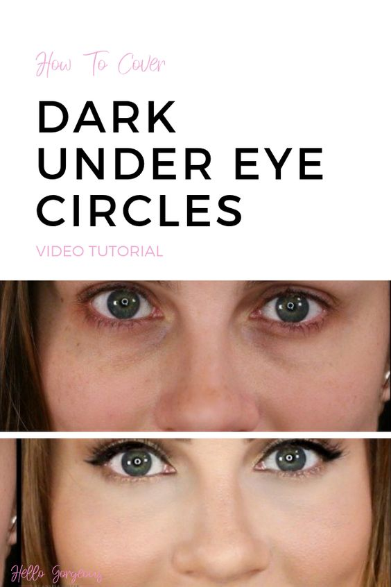 How to cover dark under eye circles, video tutorial by Angela Lanter, Hello Gorgeous. #AngelaLanterMakeup #eyesmakeup #conceal #darkcircles #makeuptutorial