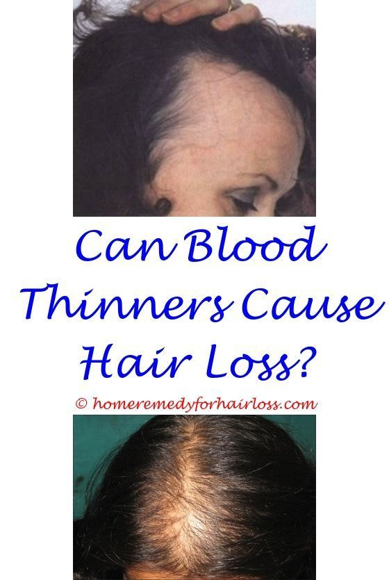 Keranique Fight Hair Loss Regrow Thicker Fuller Hair How To Prevent Hair Loss And Dandruff How To Stop Hair L Stress Hair Loss Help Hair Loss Treat Hair Loss