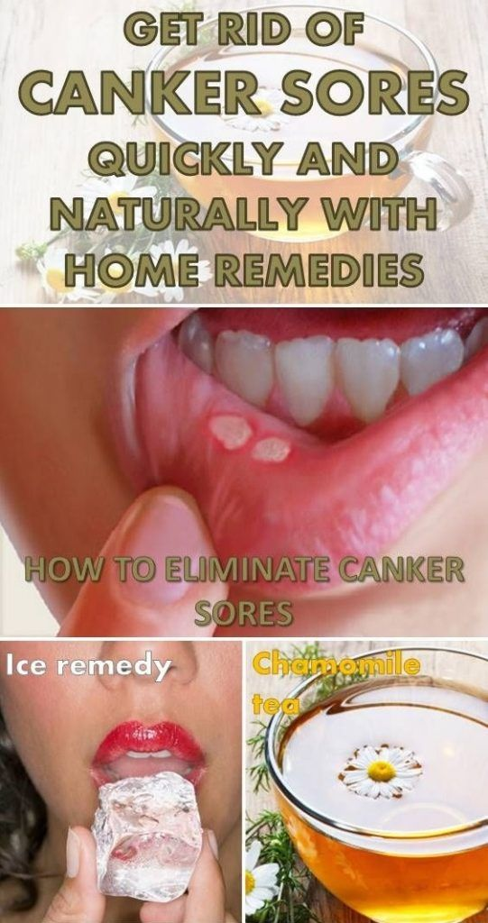 Get Rid Of Canker Sores Quickly And Naturally With Home