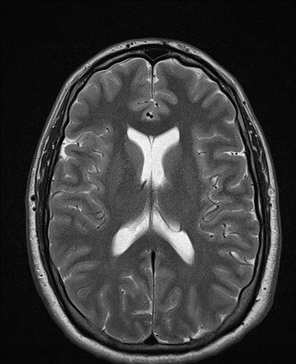 normal brain axial t2 brains pinterest