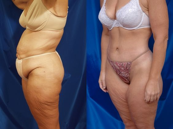 how to lose extra skin after weight loss without surgery